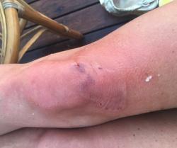 Во время отдыха в Турции на Анастасию Волочкову напала рыба и покусала
